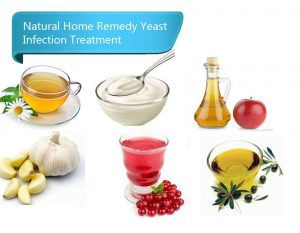 The Best Yeast Infection Treatments